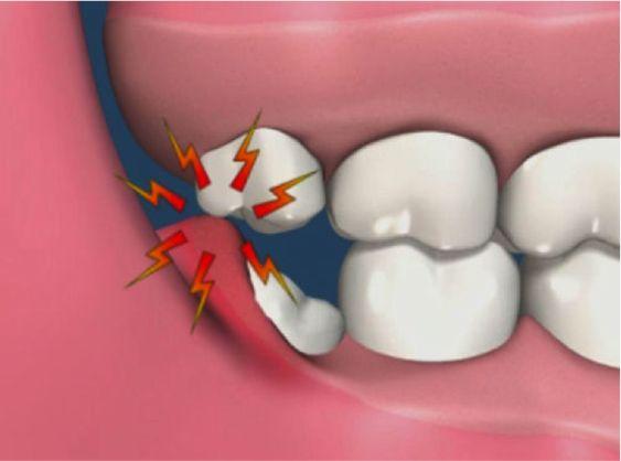 شکسته شدن دندان