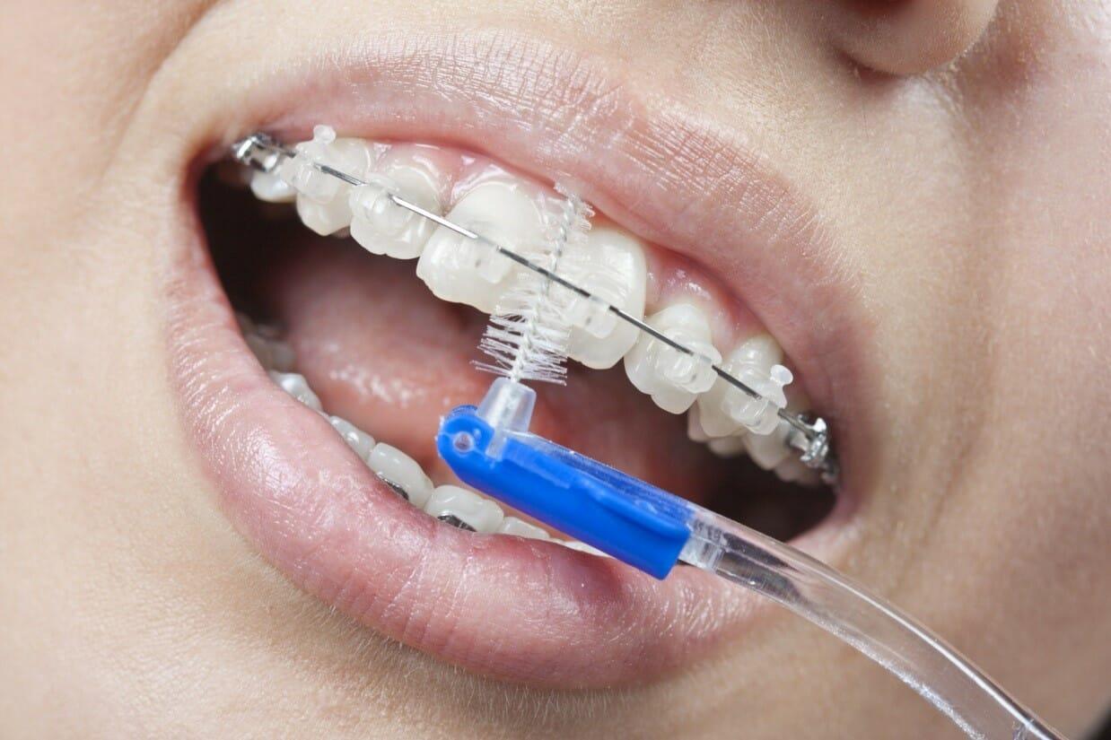 انجام ارتودنسی-بهداشت دهان