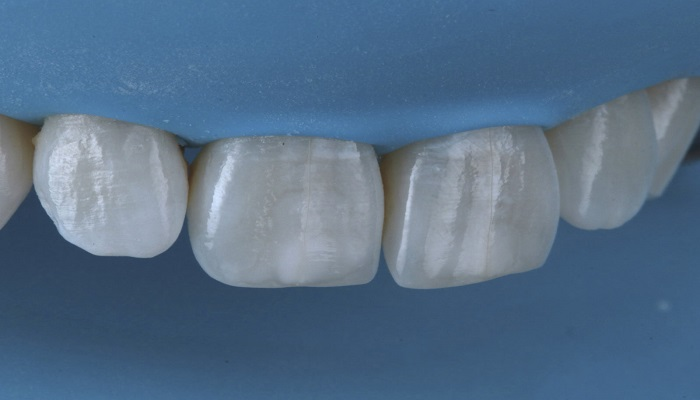 ترمیم و پر کردن دندان