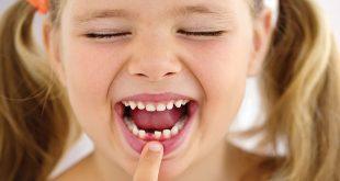 معاینه دندان شیری کودکان