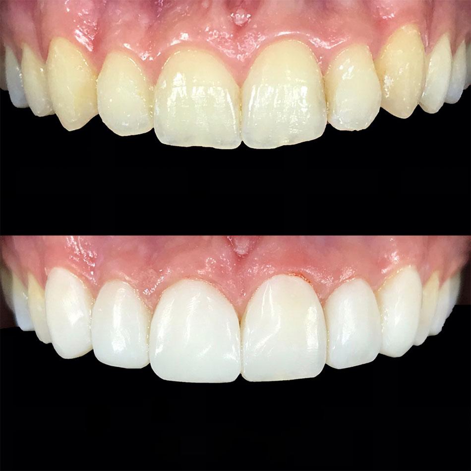 سفید شدن دندان با کامپوزیت