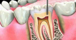 درمان تحلیل ریشه دندان